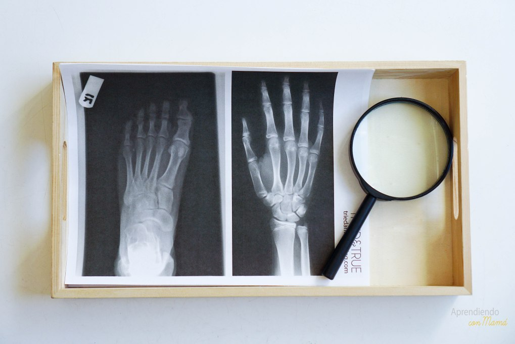 x-rays. Radiografias para tem preescolar sobre el esqueleto